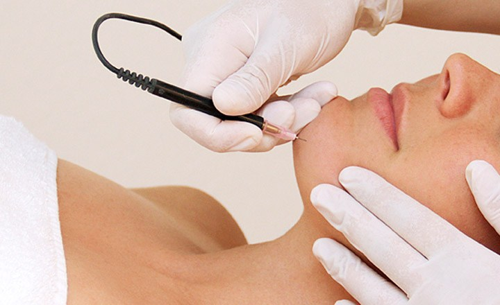 Electrolysis Vs Laser Hair Removal - Benefits  Cost  U0026 Side Effects
